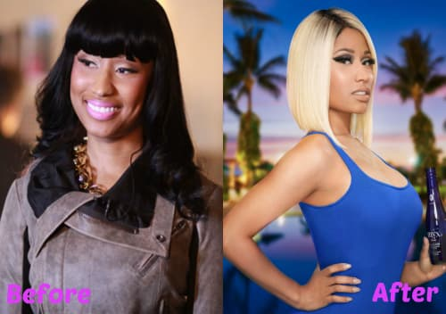 Nicki Minaj Plastic Surgery Before photo - 1