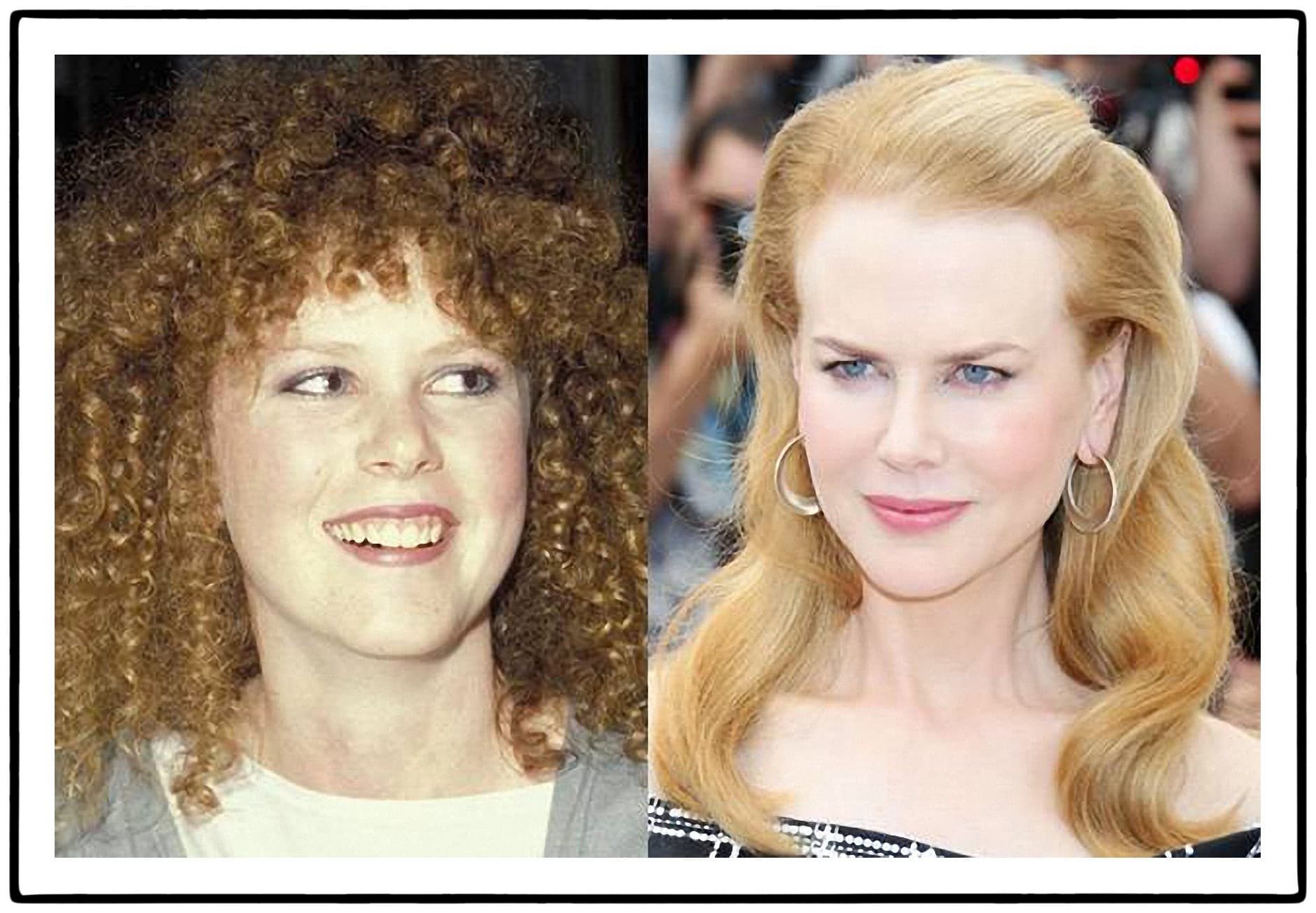 Nicole Kid Man Before And After Plastic Surgery photo - 1