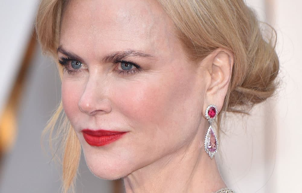 Nicole Kidman Plastic Surgery Before And After photo - 1