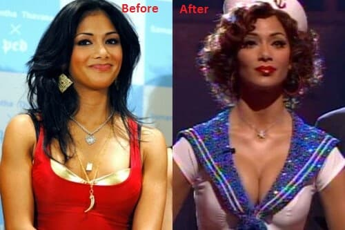 Nicole Scherzinger Plastic Surgery Before And After photo - 1