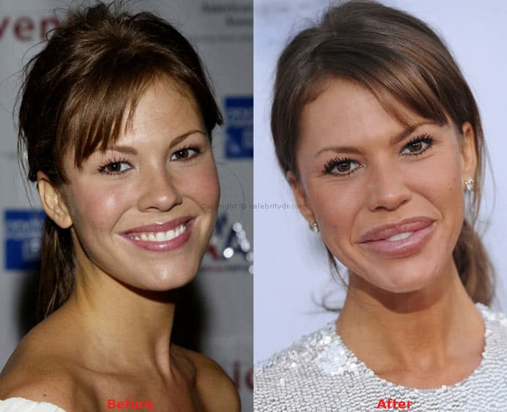 Nikki Cox Plastic Surgery Before After photo - 1