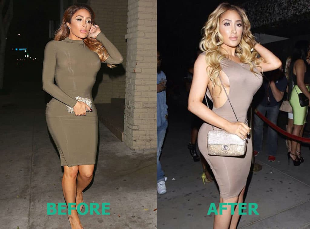 Nikki Love And Hip Hop Hollywood Before Plastic Surgery Pics photo - 1