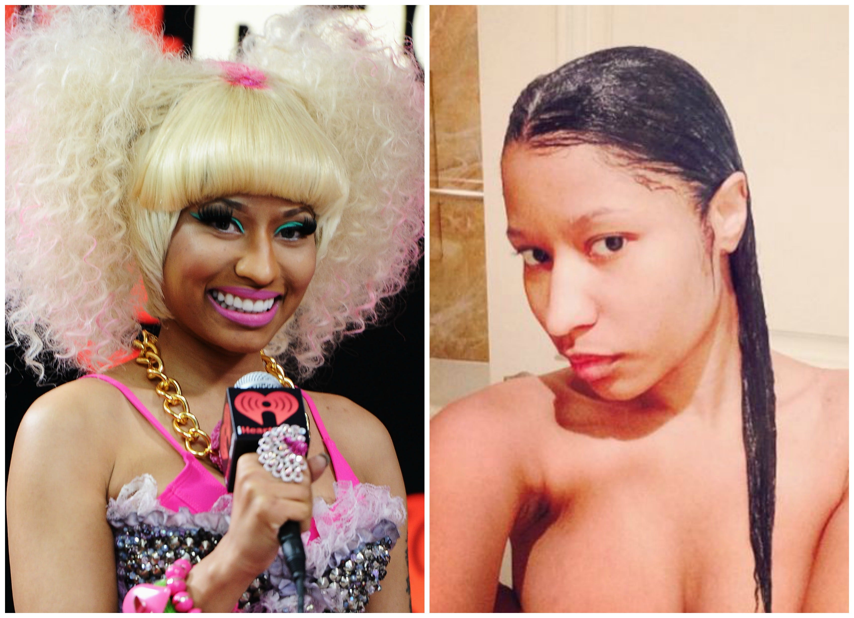 Nikki Minaj Plastic Surgery Before And After photo - 1