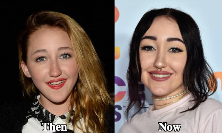 Noah Cyrus Plastic Surgery Before And After photo - 1
