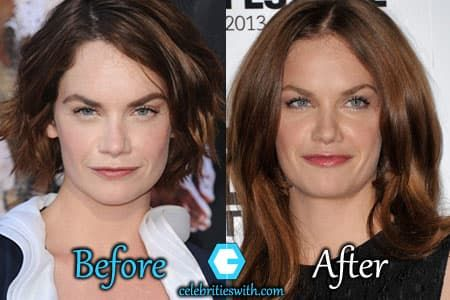 Nose Job Before After Plastic Surgery photo - 1