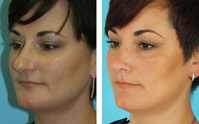 Nose Reconstruction Plastic Surgery Photos Before And After photo - 1