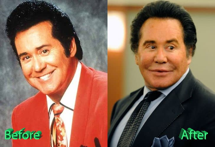 Obvious Plastic Surgery Before And After photo - 1