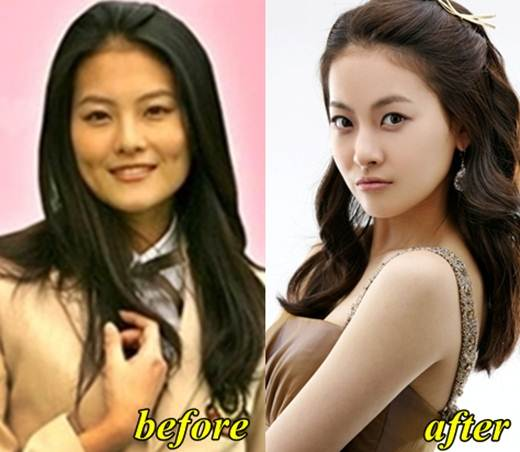 Oh Yeon Seo Before Plastic Surgery photo - 1