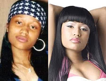 Onika Tanya Maraj Before Plastic Surgery photo - 1