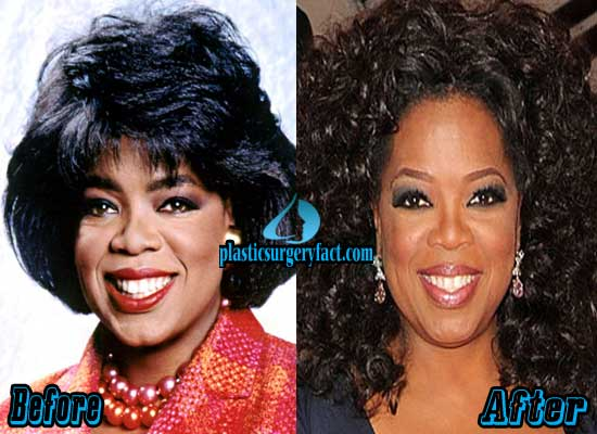 Oprah Plastic Surgery Before After photo - 1