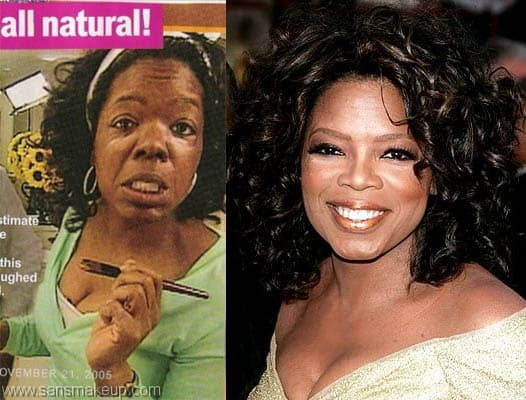 Oprah Winfrey Plastic Surgery Before And After photo - 1