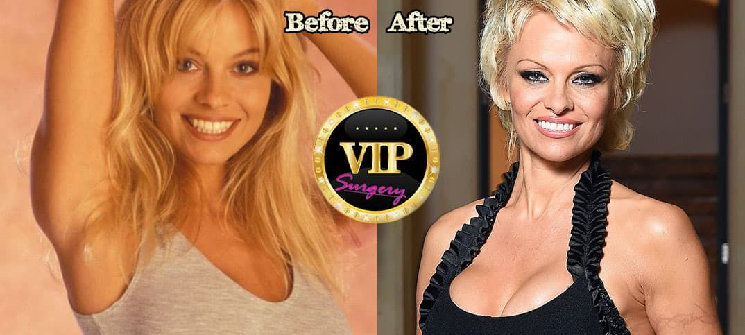 Pam Anderson Before Plastic Surgery photo - 1