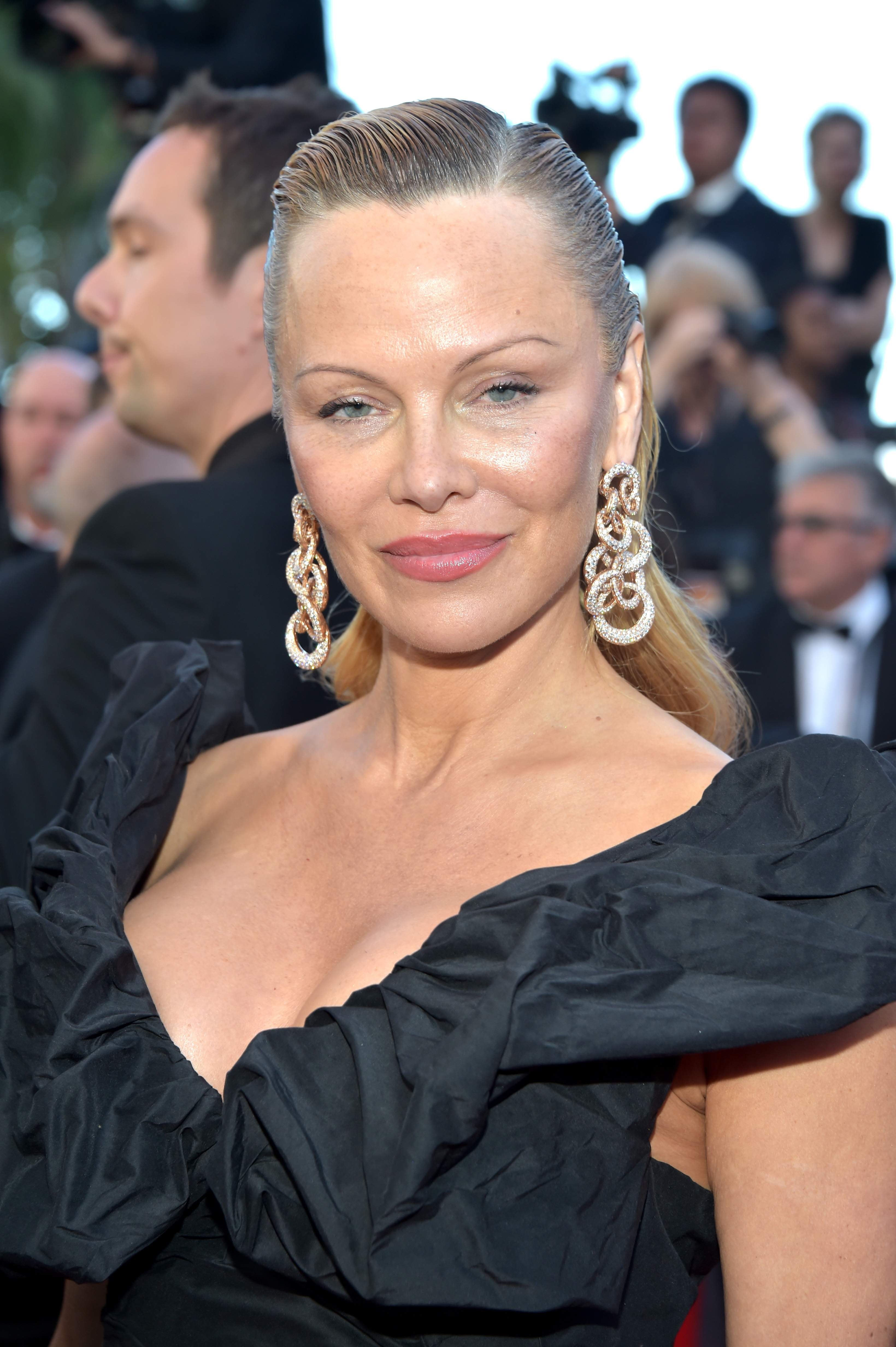 Pamela Anderson Before After Plastic Surgery photo - 1