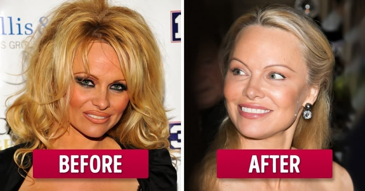 Pamela Anderson Before Plastic Surgery photo - 1