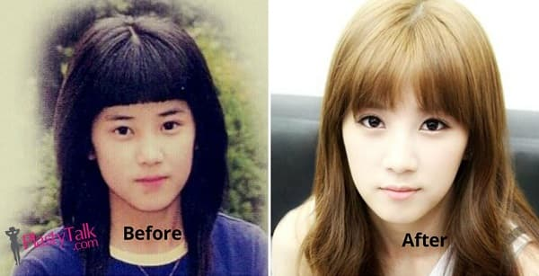 Park Chorong Before Plastic Surgery photo - 1