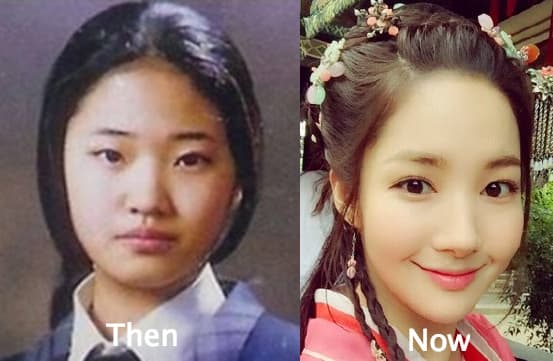Park Min Young Before Plastic Surgery photo - 1