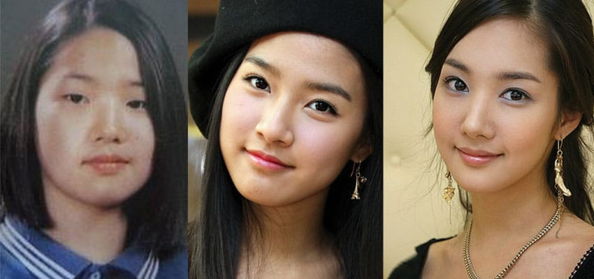 Park Min Young Plastic Surgery Before photo - 1