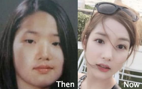 Park Min Young Plastic Surgery Before After Pictures photo - 1