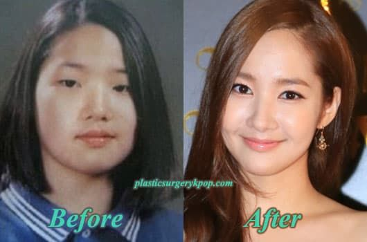 Park Min Young Plastic Surgery Before And After photo - 1