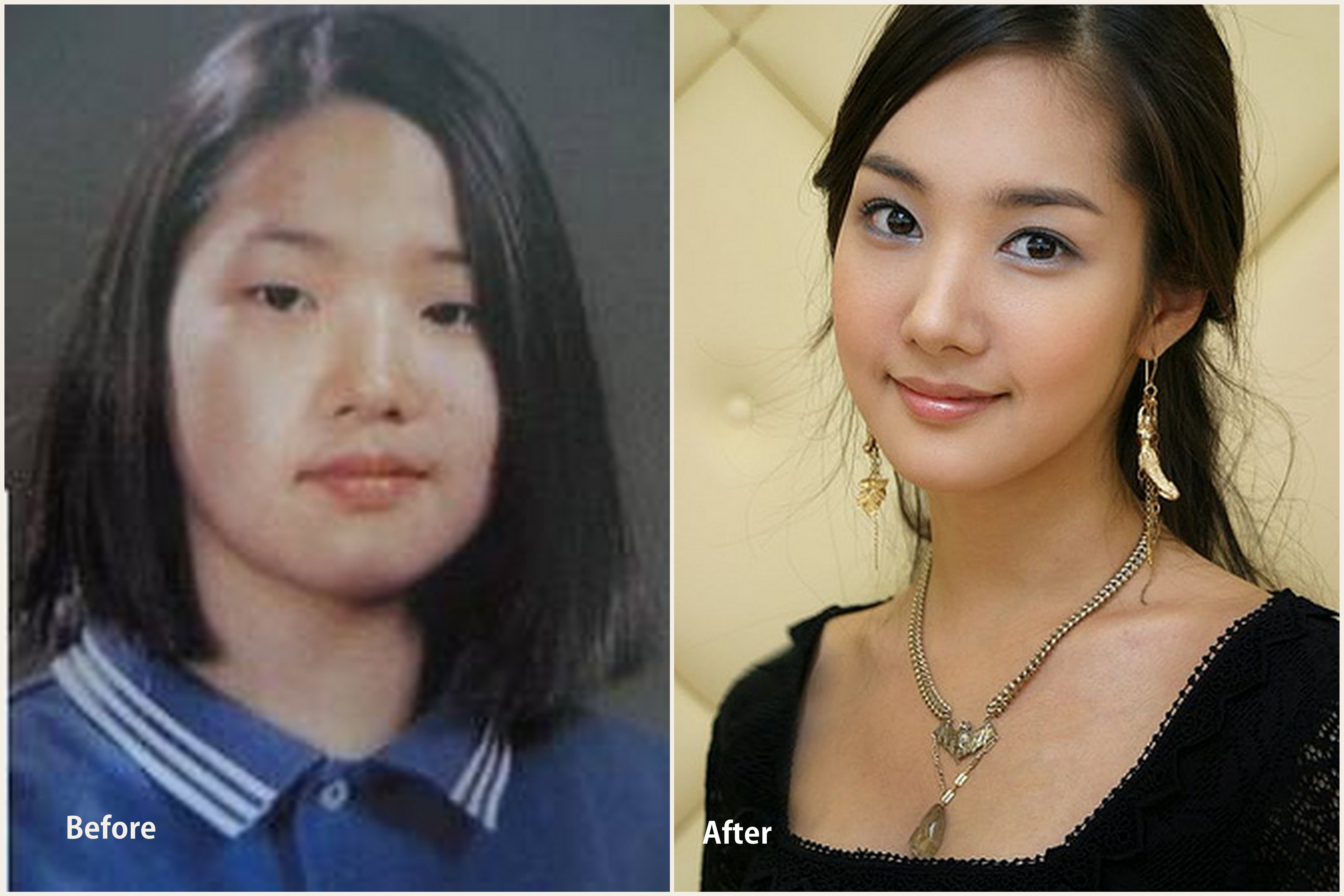 Park Shin Hye Plastic Surgery Before After photo - 1
