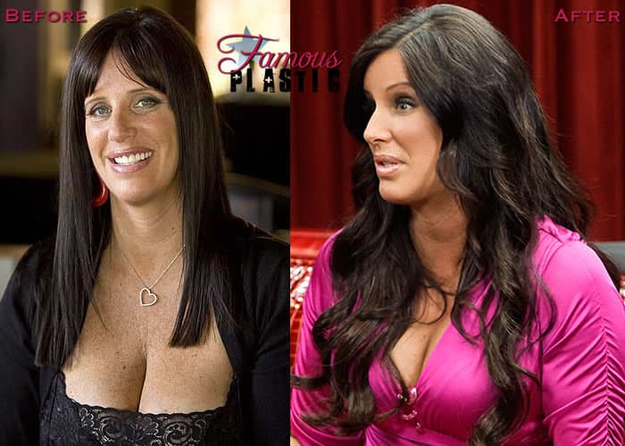 Patti Stanger Plastic Surgery Before And After 2011 photo - 1