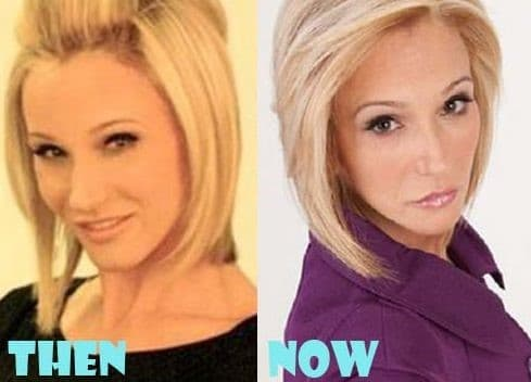 Paula White Plastic Surgery Before After Photos 2017 photo - 1