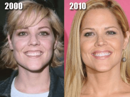 Paula Zahn Before And After Plastic Surgery photo - 1