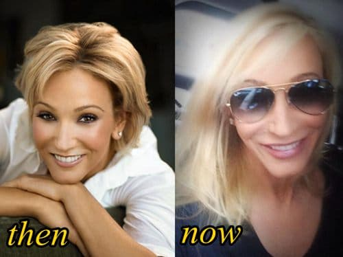 Paula Zahn Plastic Surgery Before And After photo - 1