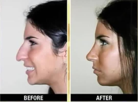 People With Plastic Surgery Before And After photo - 1