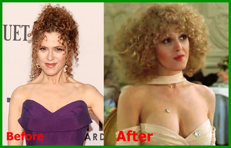 Perfect Plastic Surgery Before And After photo - 1