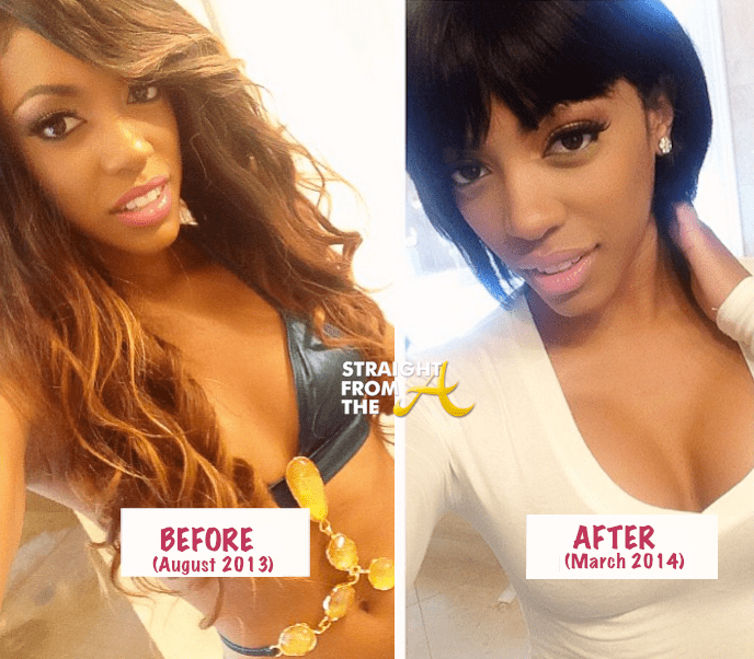 Phaedra Before And After Plastic Surgery photo - 1