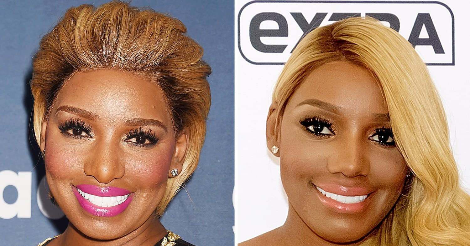 Phaedra Parks Plastic Surgery Before And After photo - 1