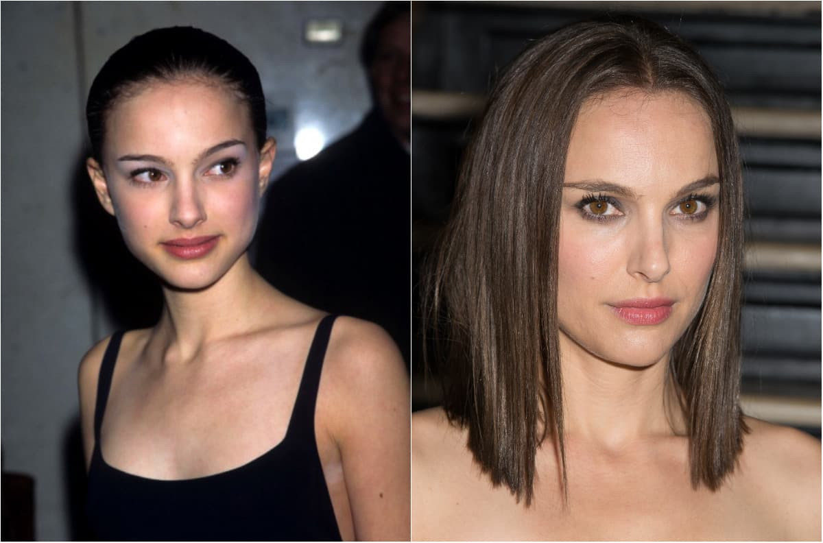 Phoebe Tonkin Plastic Surgery Before And After photo - 1