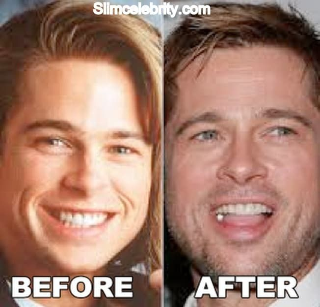 Photos Of Before And After Plastic Surgery Brad Pitt Teeth photo - 1