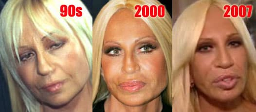 Photos Of Donatella Versace Before Plastic Surgery photo - 1
