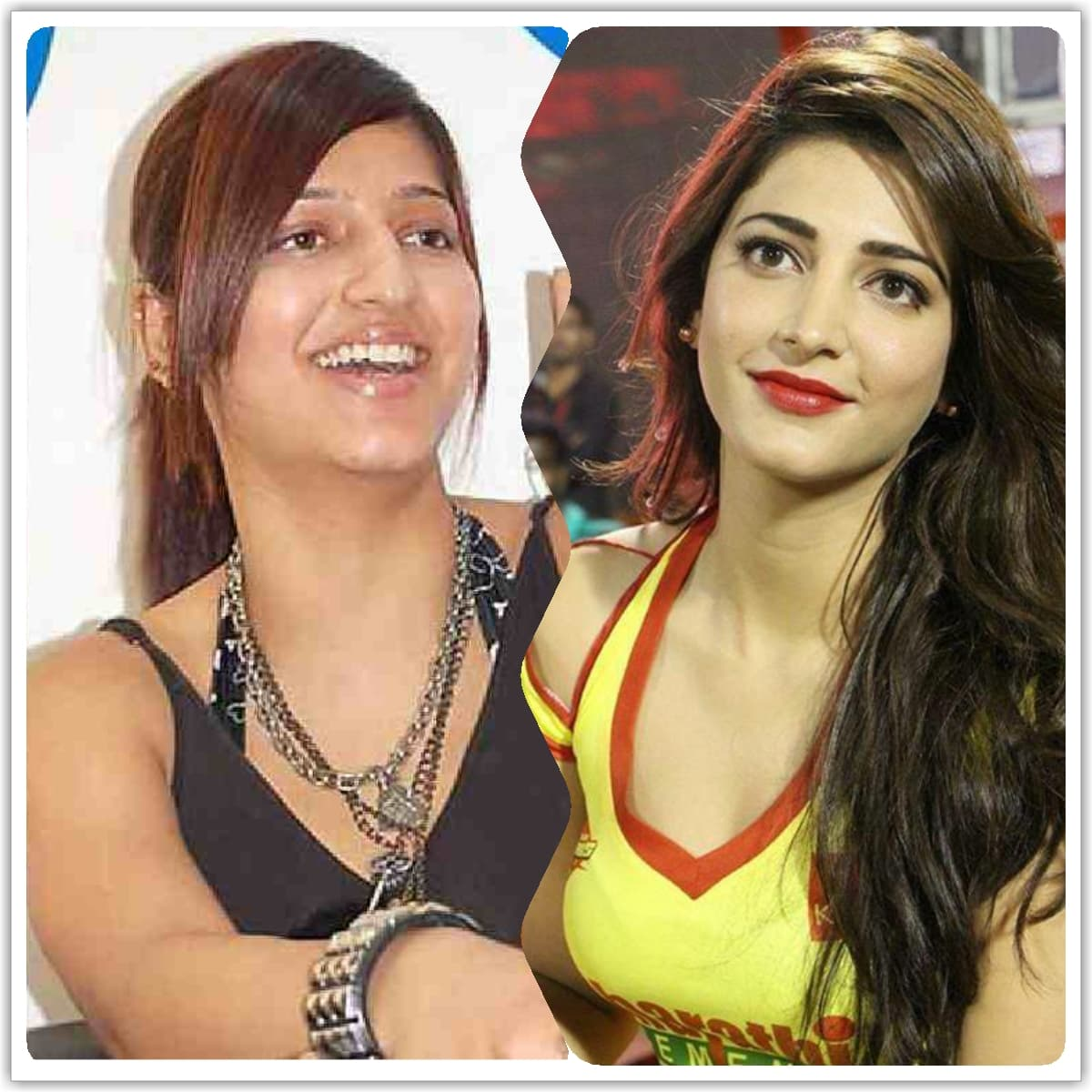 Pics Of Shruti Hassan Before Plastic Surgery photo - 1