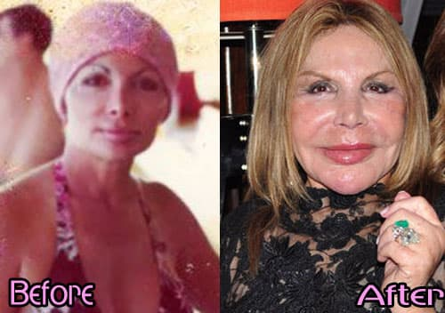 Picture Of Elsa Before Plastic Surgery photo - 1