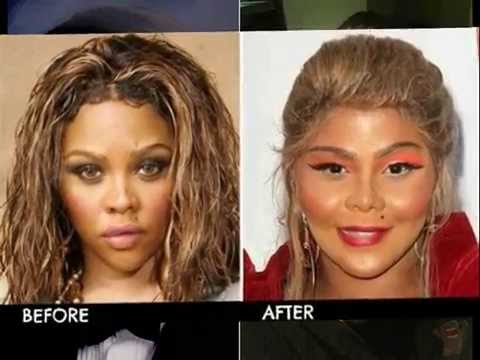 Pictures Of Axl Rose Before And After Plastic Surgery photo - 1