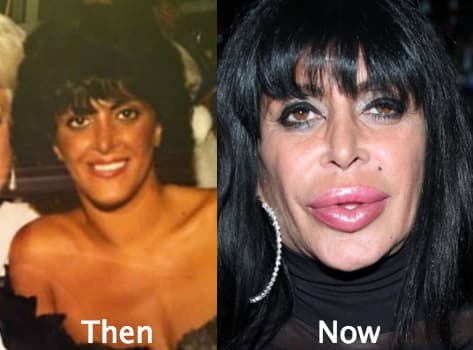 Pictures Of Big Ang Before Plastic Surgery photo - 1