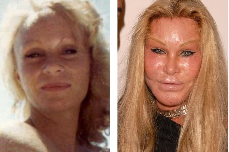 Pictures Of Jocelyn Wildenstein Before She Got Plastic Surgery photo - 1