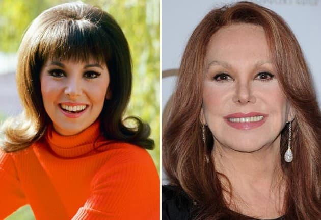 Pictures Of Marlo Thomas Before Plastic Surgery photo - 1