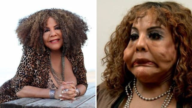 Pictures Of Oprah Before And After Plastic Surgery photo - 1