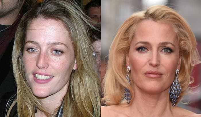 Pictures Of Renee Zellweger Of Before And After Plastic Surgery photo - 1