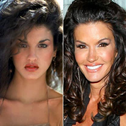 Pictures Of Stars Before And After Plastic Surgery photo - 1