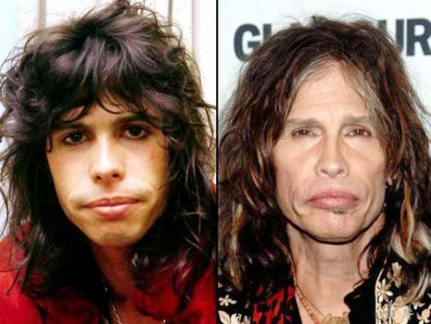 Pictures Of Steven Tyler Before And After Plastic Surgery photo - 1