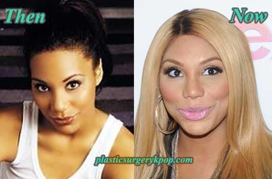 Pictures Of Toni Braxton Before Plastic Surgery photo - 1