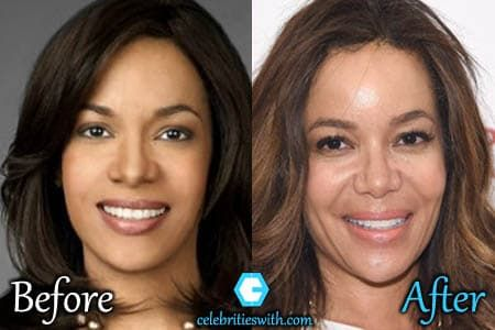 Pictures Of Wendy Williams Before Plastic Surgery photo - 1