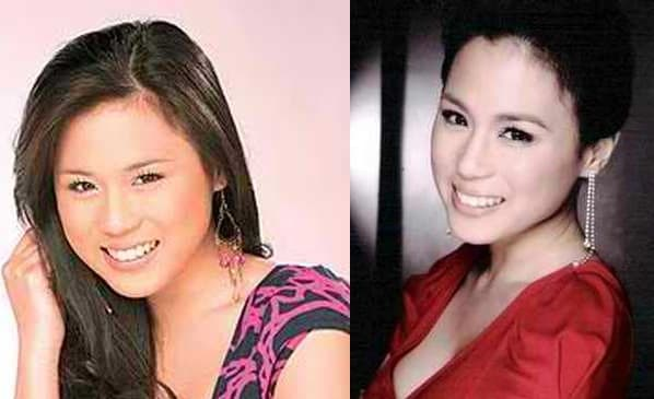Pinay Celebrities Plastic Surgery Before And After photo - 1
