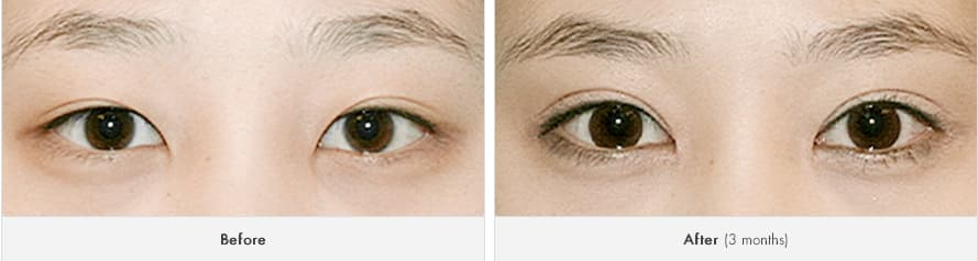 Plastic Eye Surgery Before And After photo - 1