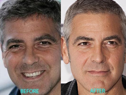 Plastic Facial Surgery Before And After photo - 1
